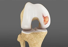 Articular Cartilage Injury