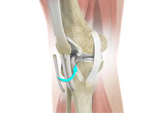 Bone-Patellar Tendon-Bone (BPTB) Autograft